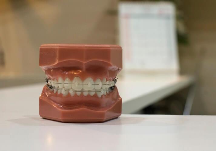 Cosas que debes saber sobre la ortodoncia