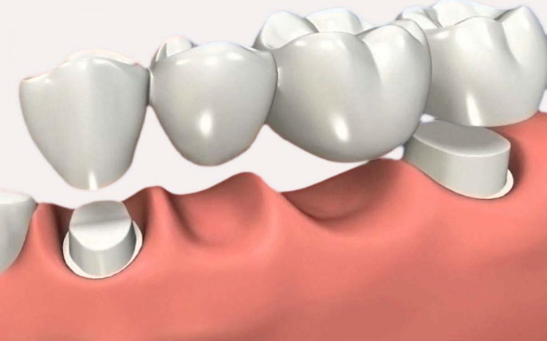 ¿Qué son los puentes y las coronas dentales?