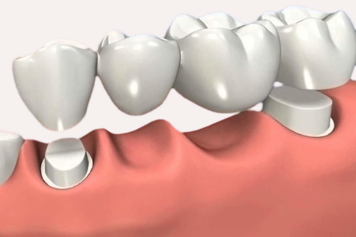 puentes y coronas dentales