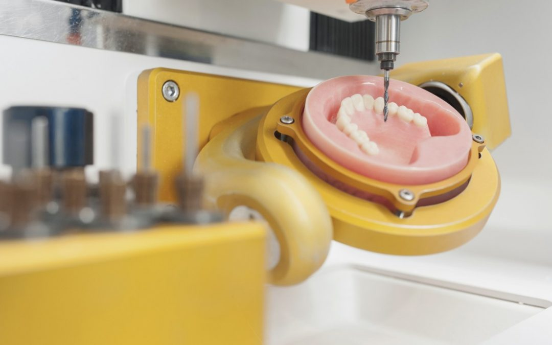 ¿Conoces la tecnología CAD-CAM de nuestra clínica dental de Móstoles?