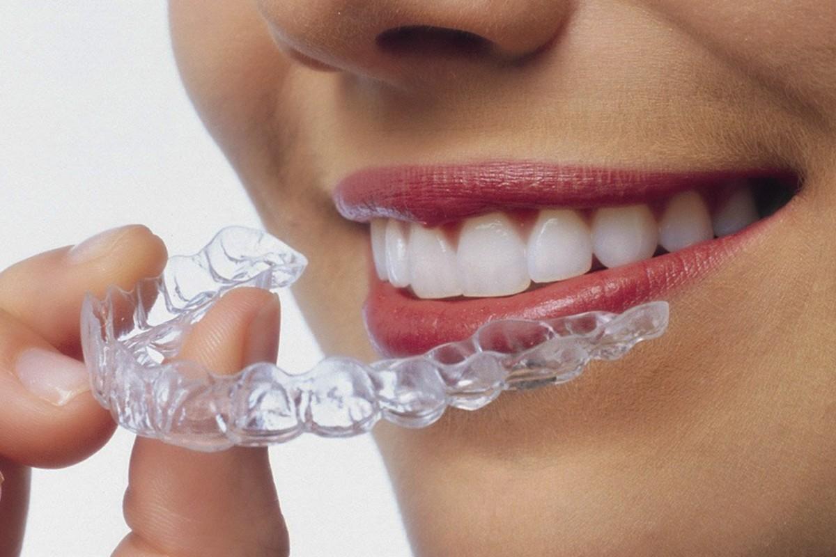 tratamiento de ortodoncia Invisible en Móstoles