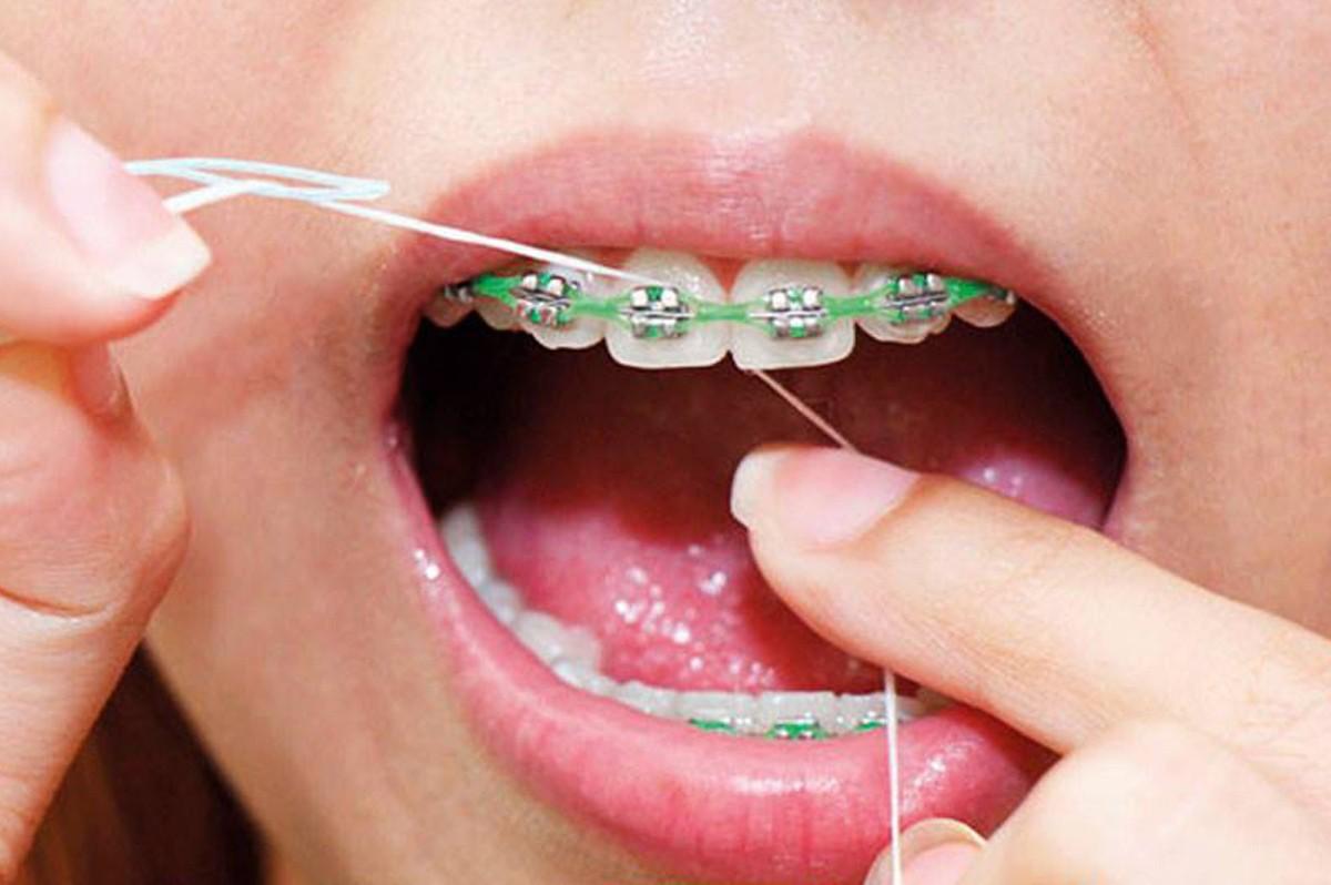 Cómo usar hilo dental con brackets