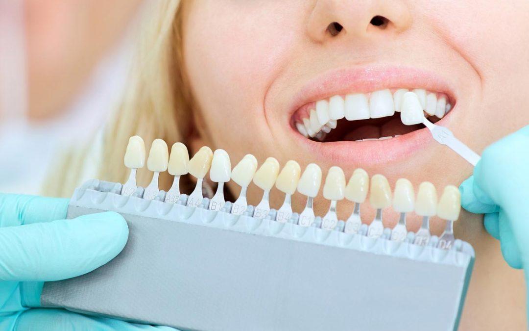 ¿Qué problemas solucionan las carillas dentales?