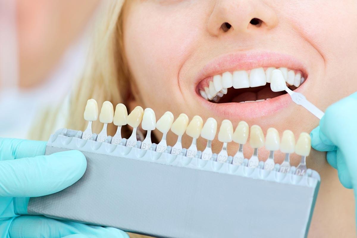qué probemas solucionan las carillas dentales