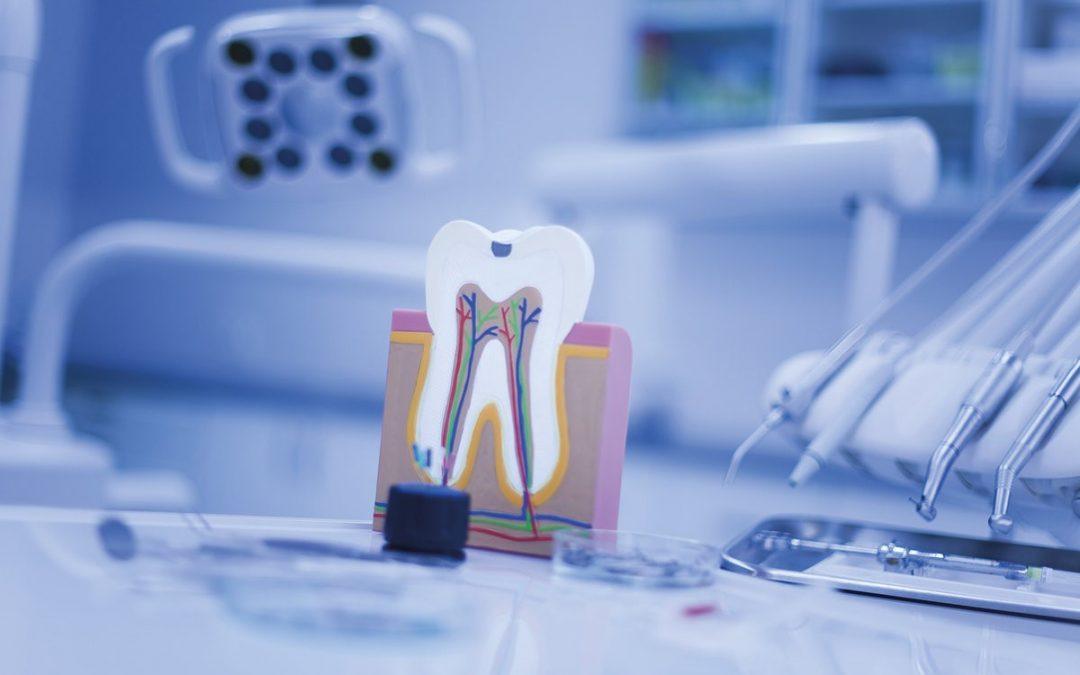 ¿Cuál es la diferencia entre endodoncia y empaste?