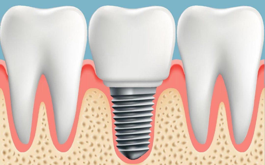 Cuánto tarda en cicatrizar un implante dental