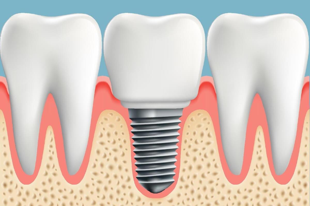 Cuanto tarda en cicatrizar un implante dental