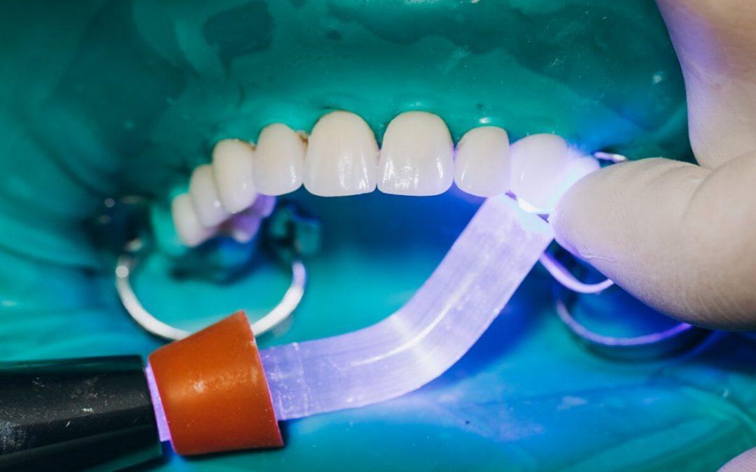 ¿Pueden llevar carillas dentales los pacientes con bruxismo?