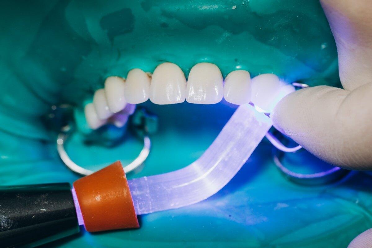 Carillas dentales y bruxismo