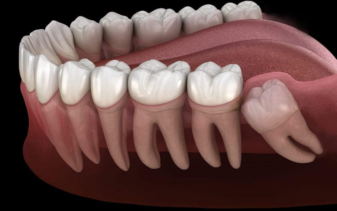 ¿Cómo se corrige un diente impactado?