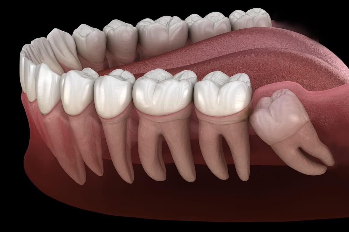 cómo se corrige un diente impactado