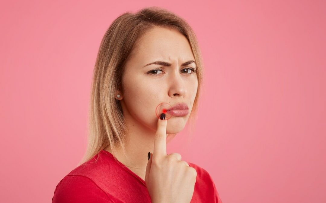 qué son las úlceras bucales