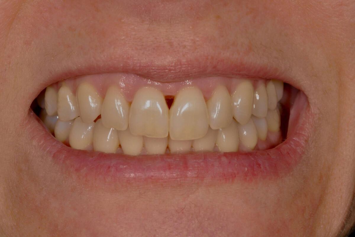Espacios negros entre los dientes