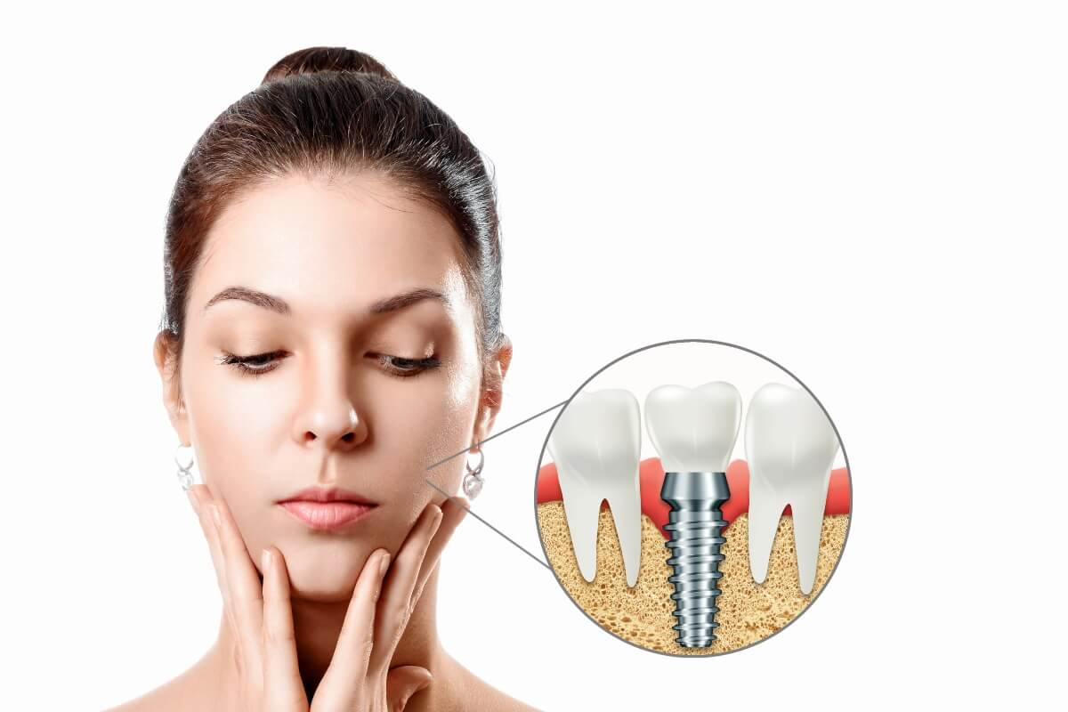 ¿Pueden moverse los implantes dentales?