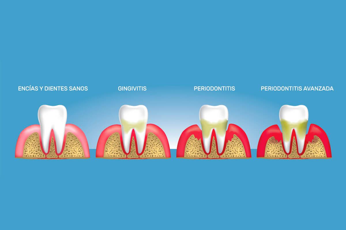 diferencias entre gingivitis y periodontitis