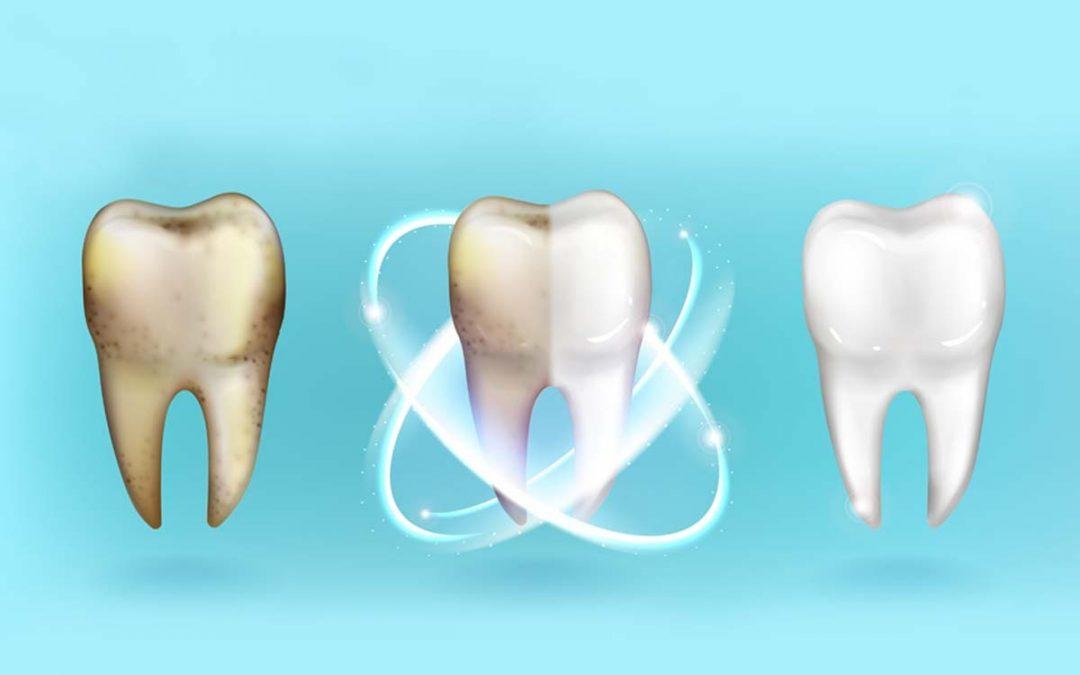 ¿Por qué se produce sensibilidad tras un blanqueamiento dental?
