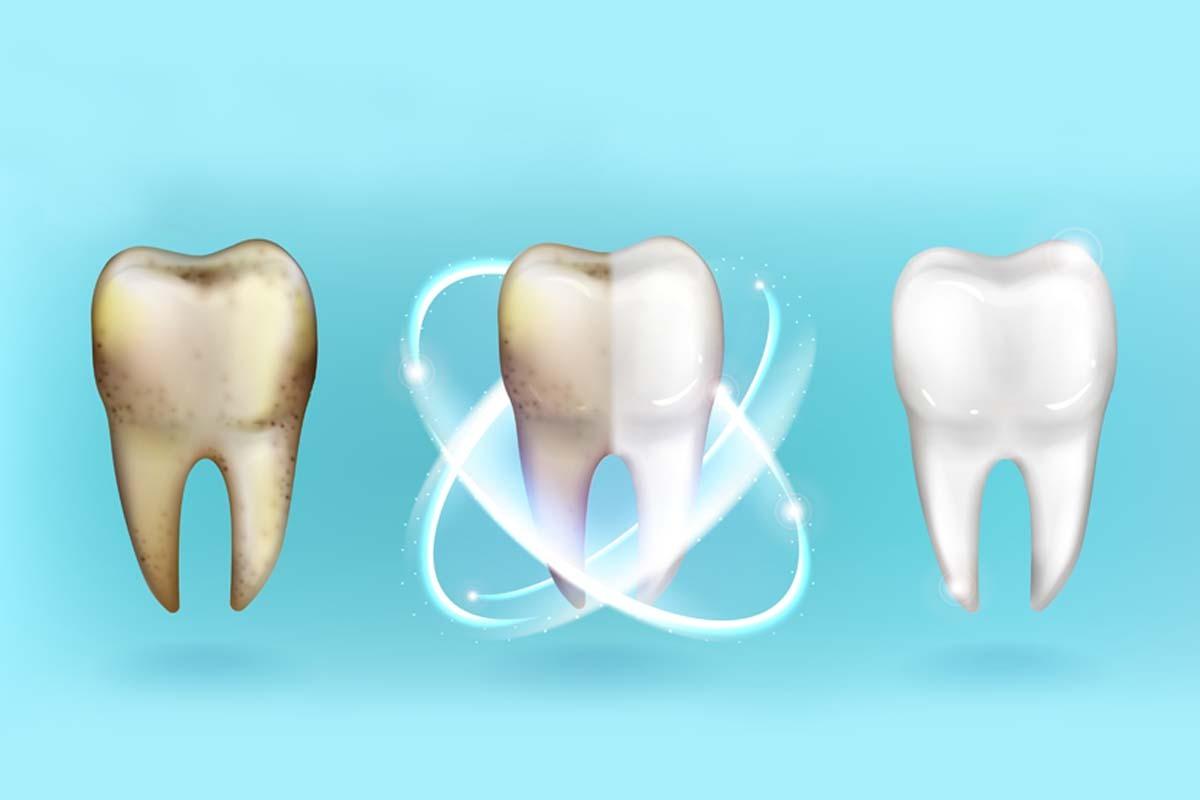 Sensibilidad tras un blanqueamiento dental