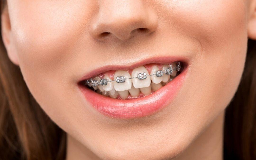 ¿Para qué sirve el alambre trenzado en ortodoncia?